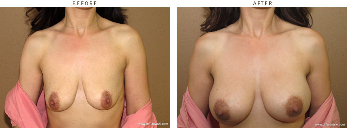Scarless Internal Breast Lifting – Before and After Pictures