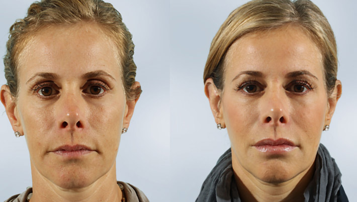 sculptra-before-and-after-02