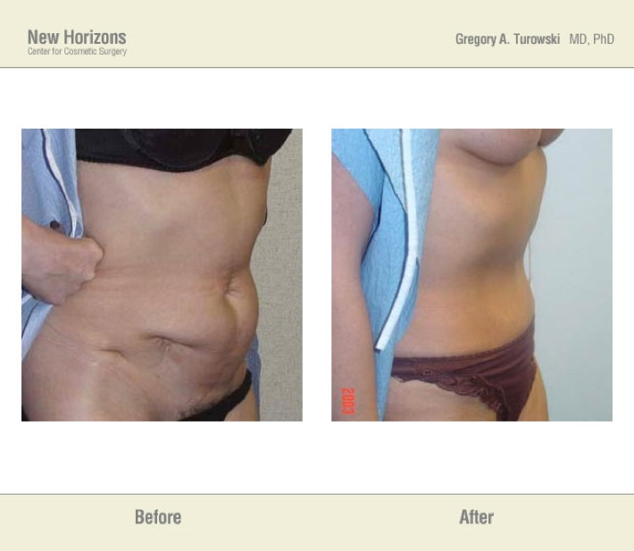 Tummy Tuck (Abdominoplasty) – Before & After Pictures