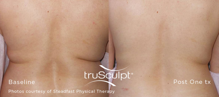truSculpt Body - berore and after pictures