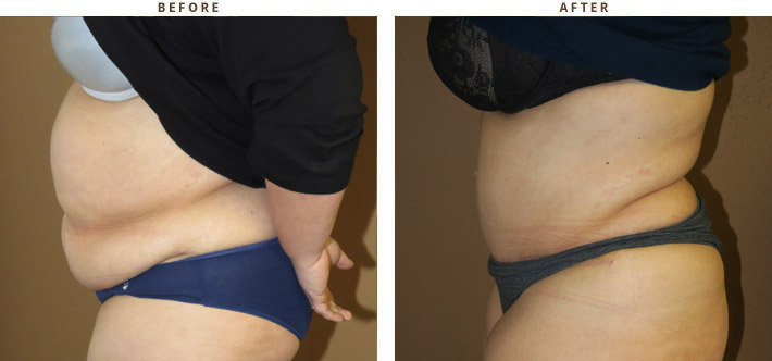 Having a tummy tuck can improve back pain Daily Mail Online Tummy after birth pictures