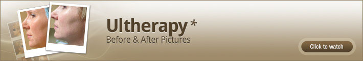 Ultherapy Chicago - before and after pictures