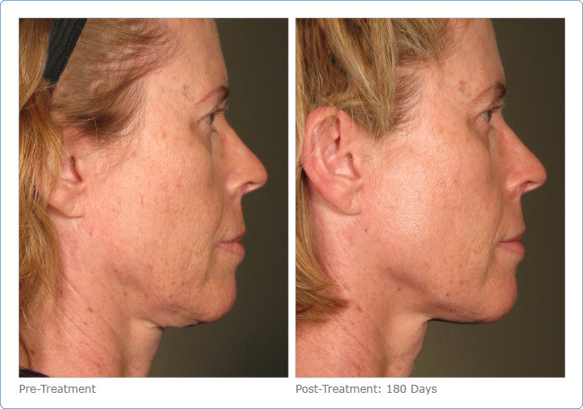 Ultherapy - Before & After Pictures