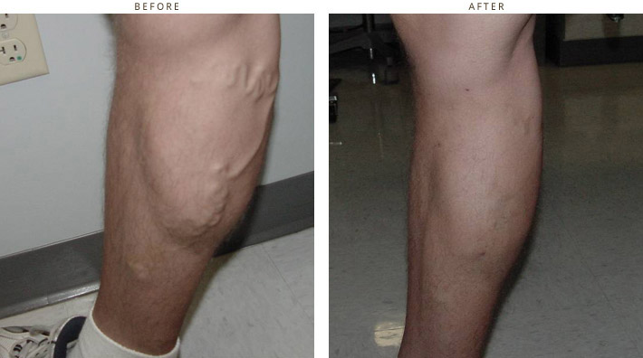 Varicose Veins - Before and After Pictires