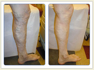 Varicose veins and broken vessels removal 04