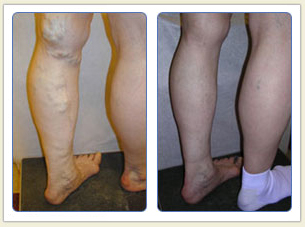 Varicose veins and broken vessels removal 06