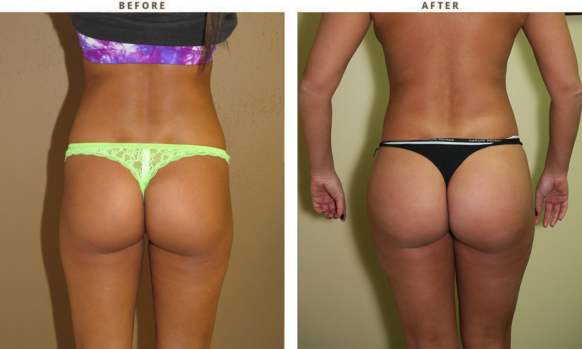 Liposuction Before And After Pictures Dr Turowski Plastic Surgery Chicago