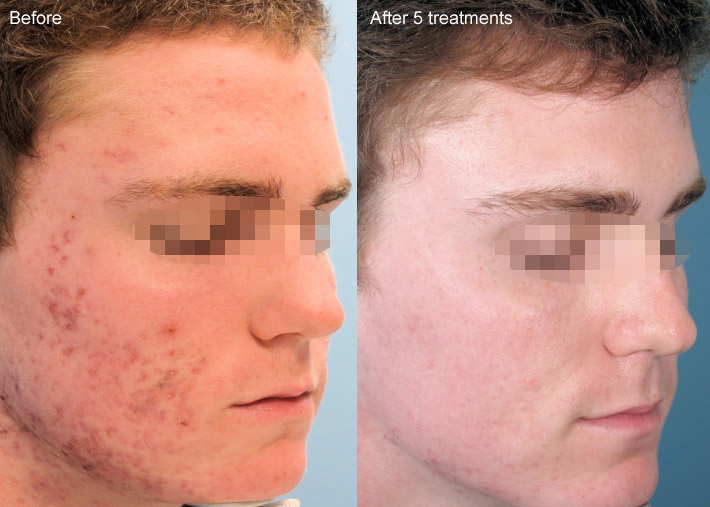 Acleara™ Acne Therapy Chicago * – Dr Turowski – Plastic