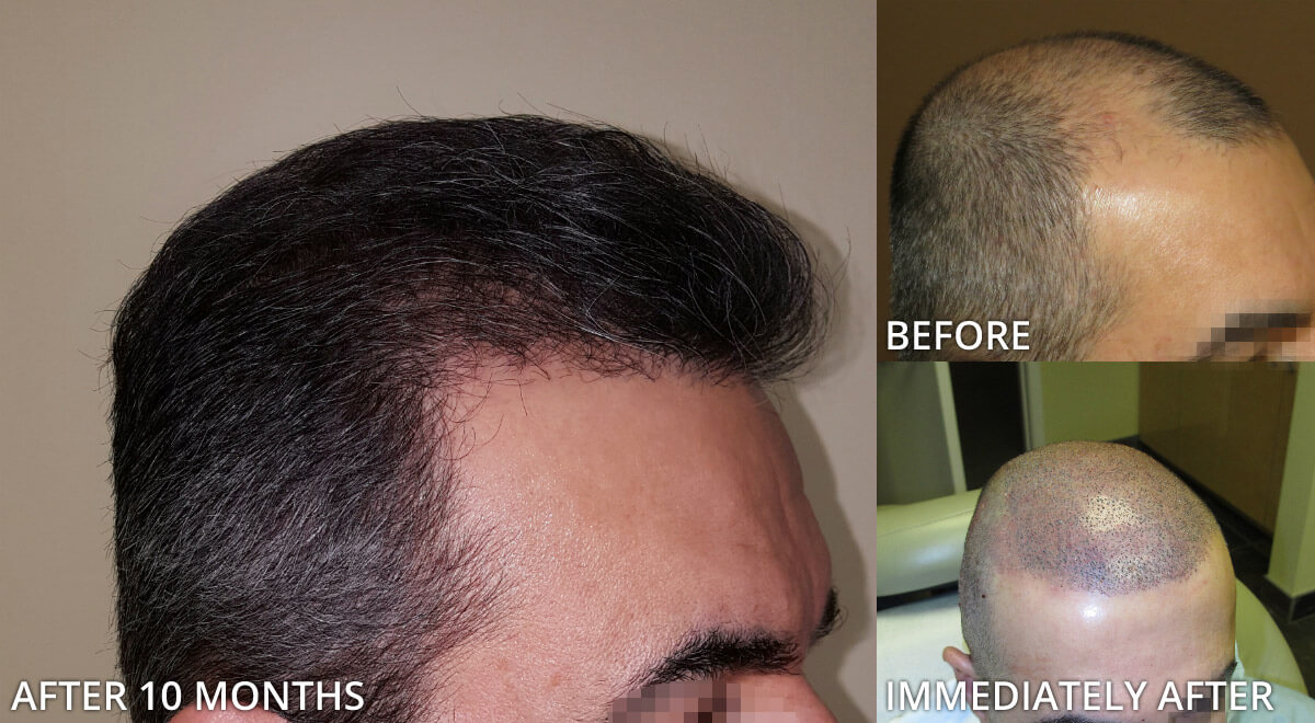 Hair Transplantation Before After Smart Hair Transplant