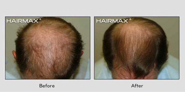 Hairmax Lasercomb Chicago Dr Turowski Plastic Surgery