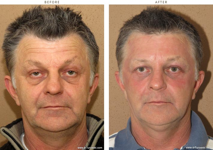 Laser resurfacing – Before and After Pictures * – Dr