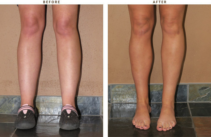 Calf Augmentation  Before And After Pictures   Dr Turowski  Plastic Surgery -5262