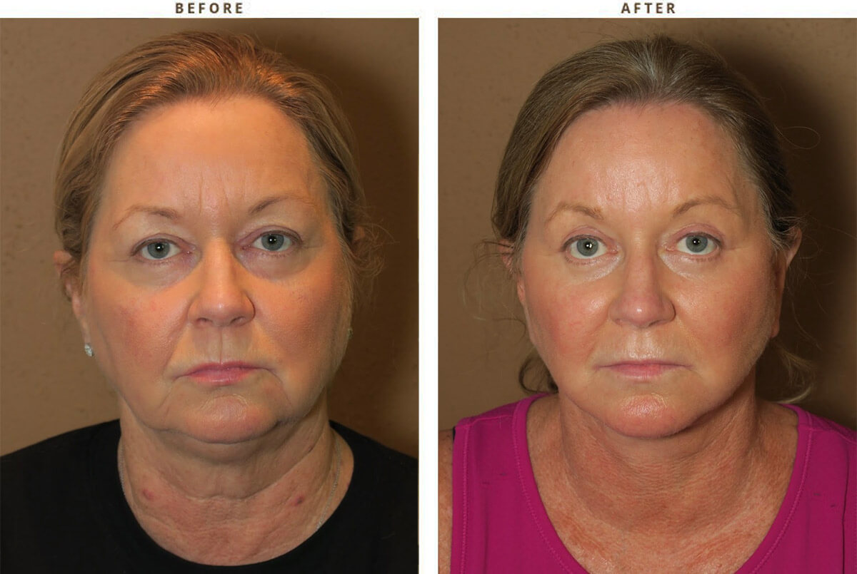 Face Lift Before And After Pictures Dr Turowski Plastic Surgery Chicago