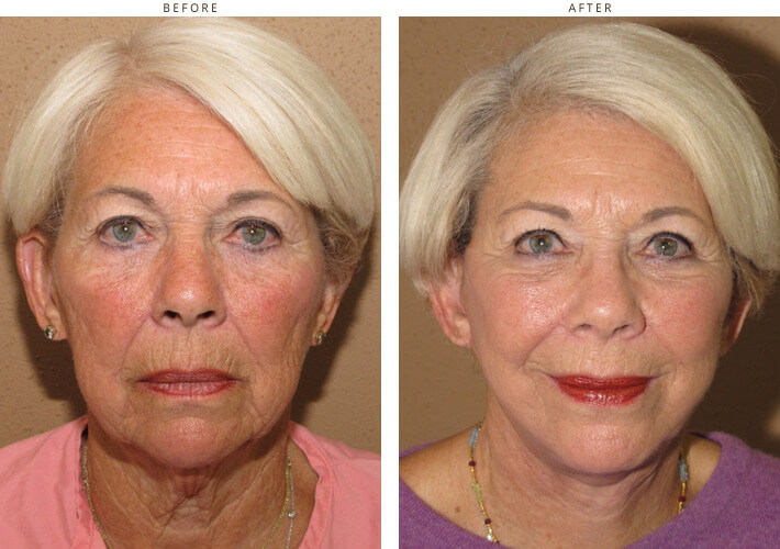 Mid Face Lift Before And After Pictures Dr