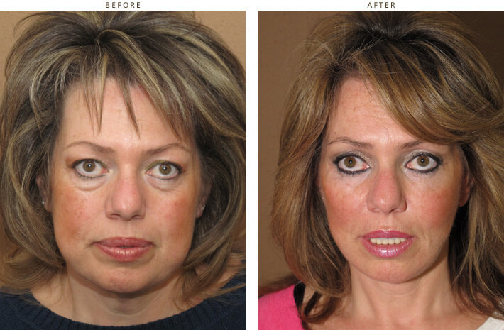Beautiful Celebrities who have had Facelifts - Before and ...