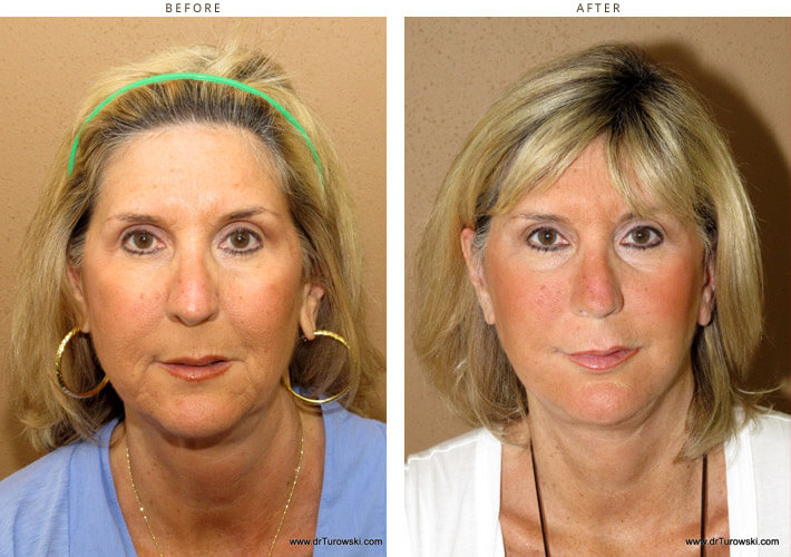Face Lift – Before and After Pictures * – Dr Turowski – Plastic