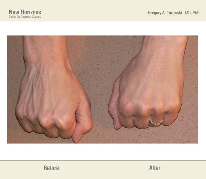 Body Rejuvenation Spa