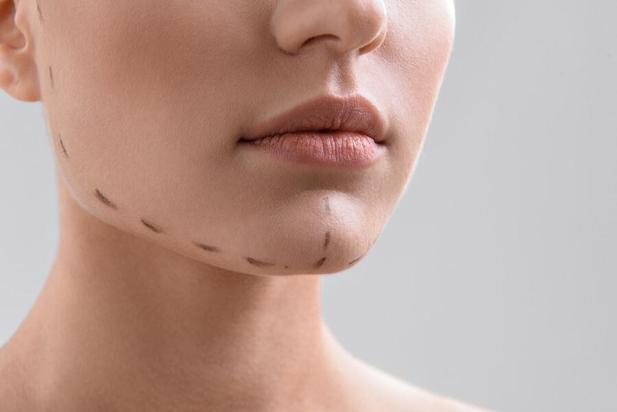 Chin Implants Dr Turowski Plastic Surgery Chicago