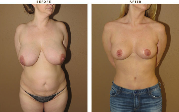 How breast reduction can change your life