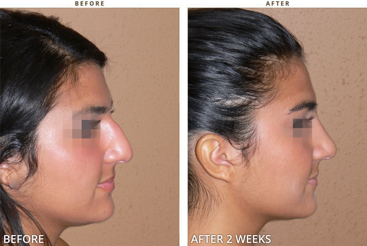 Rhinoplasty Before And After Pictures Dr Turowski Plastic Surgery Chicago