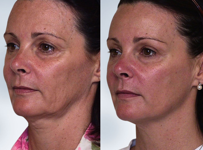 Sculptra - Before and After Pictures * | Dr Turowski ...