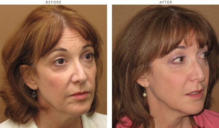 Sculptra Before And After Pictures Dr Turowski